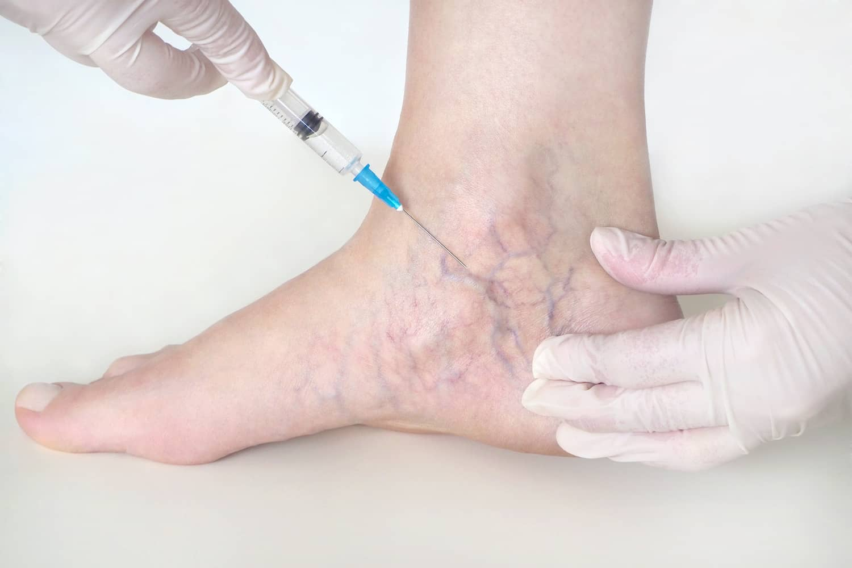Szkleroterápia